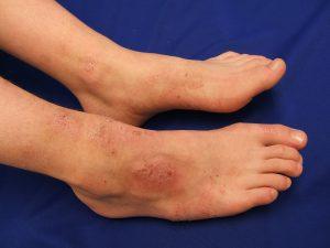 types of eczema, eczema, Atopic Dermatitis