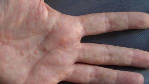 Dyshidrotic Eczema, types of eczema, eczema