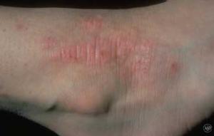 Nummular eczema, types of eczema, eczema